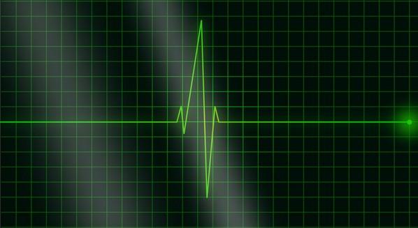 Novidade: Eletrocardiograma e Eletroencefalograma